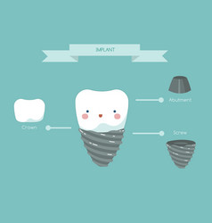 Dental implant structure teeth and tooth concept vector