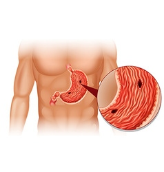 Stomach ulcer in human body vector