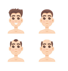 hair stages loss types of baldness on male head vector image