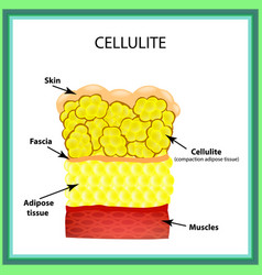 cellulite the anatomical structure of the adipose vector image