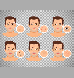 Man skin problems vector