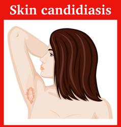 Skin candidiasis vector