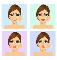 Young girl with a problem and clean skin vector image vector image