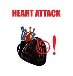 Heart myocardial infarction vector