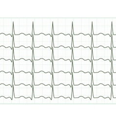 Heart cardiogram EPS 8 vector image