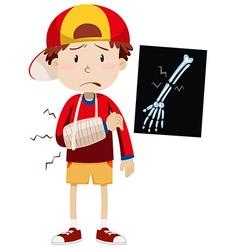 Sad boy with broken arm vector