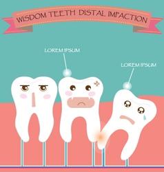 Wisdom teeth distal impaction vector