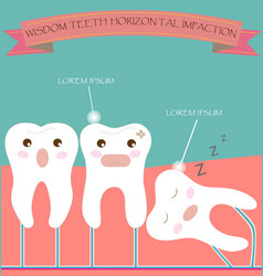 Wisdom teeth horizontal impaction vector