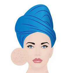 a girl having skin problems vector image