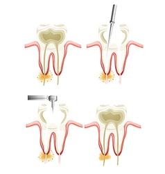 Root canal procedure vector image