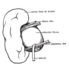 Abnormal renal artery vintage vector
