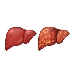 Liver of healthy person liver patients with vector