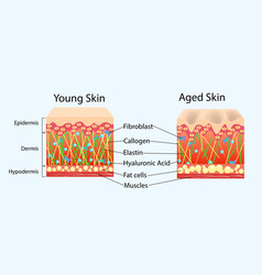 Diagram with schemes of two types of skin vector