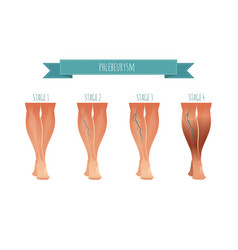 Phlebology infographic treating varicose veins vector