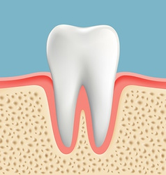 Human tooth with caries vector