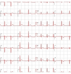 Electrocardiogram red graph with marks on white vector image