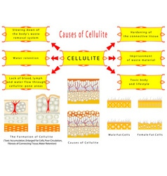 Formation of Cellulite vector image vector image