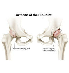 Arthritis of the hip joint vector