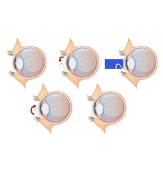Laser eye correction vector
