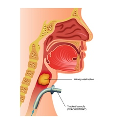 Tracheotomy vector