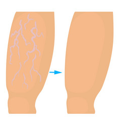 Varicose veins operation icon cartoon style vector
