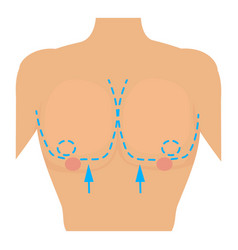 Woman breast marked out for cosmetic surgery icon vector