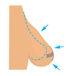 Breast reduction plastic correction icon vector