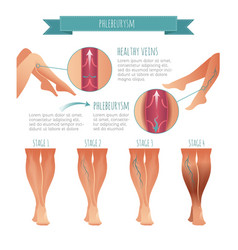 Phlebology infographic stage of vein vector