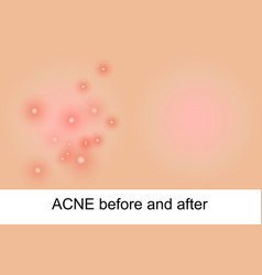 acne vector image vector image