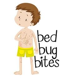Boy having bed bug bites vector