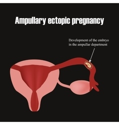 Development of the embryo in the ampullar vector