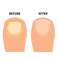 Toe nail before and after fungal disease vector