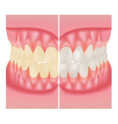 Teeth whitening dental care before and after vector