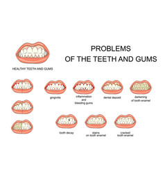 Problems of the teeth and gums vector