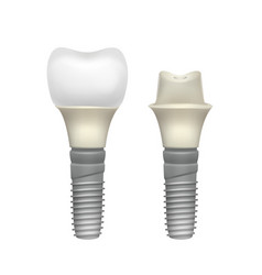 Plastic assembled tooth implant vector