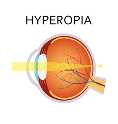 Hyperopia eyesight disorder vector
