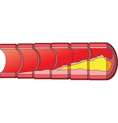 Cholesterol vector image