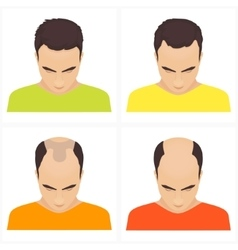 Hair loss stages in men vector