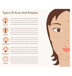 Types of acne and pimples vector