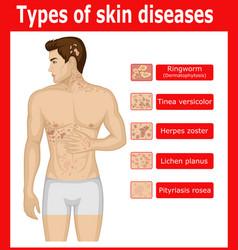 Types of skin diseases vector