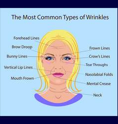 common types of facial wrinkles cosmetic surgery vector image vector image