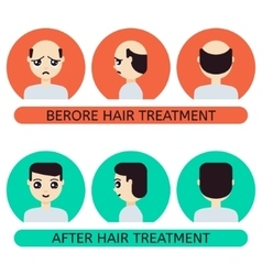 Cartoon man before and after hair treatment vector image