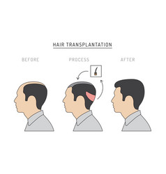 Hair transplantation vector