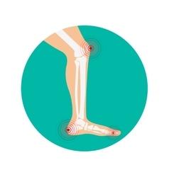 Human leg pain zones design elements for vector