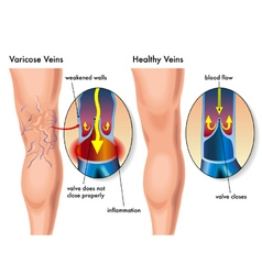 Varicose veins vector