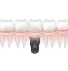 Metal tooth implant vector