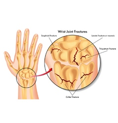 wrist joint fractures vector image vector image