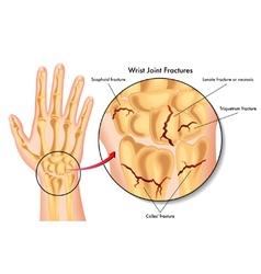 Wrist joint fractures vector
