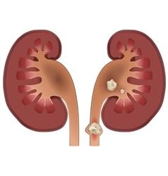 Nephrolithiasis kidney stones disease vector