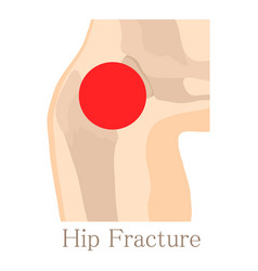 Hip fracture icon cartoon style vector